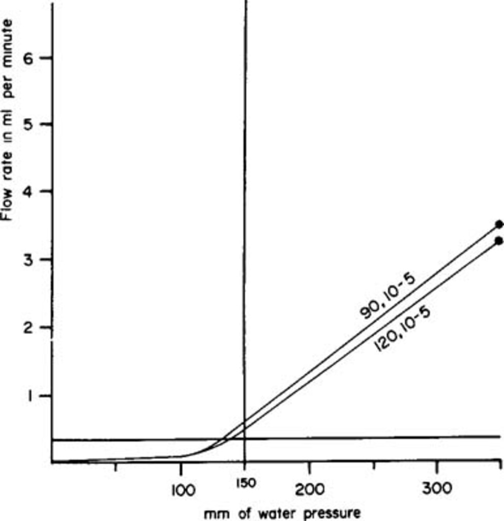Cerebrospinal fluid shunts: an experimental comparison of ... on