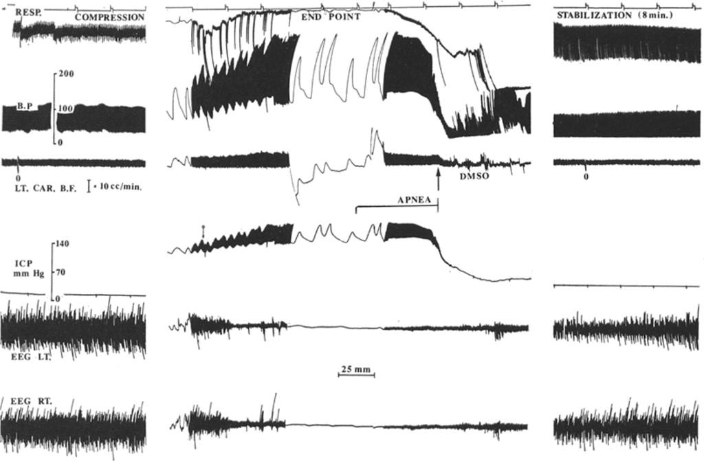 Dimethyl sulfoxide in the treatment of experimental brain