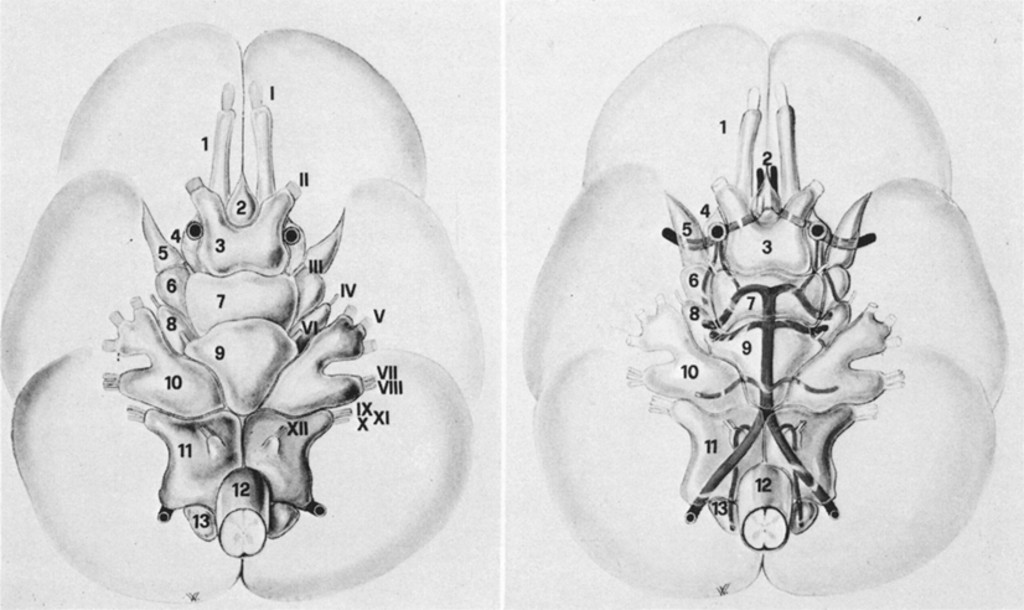 Anatomical Observations Of The Subarachnoid Cisterns Of The Brain
