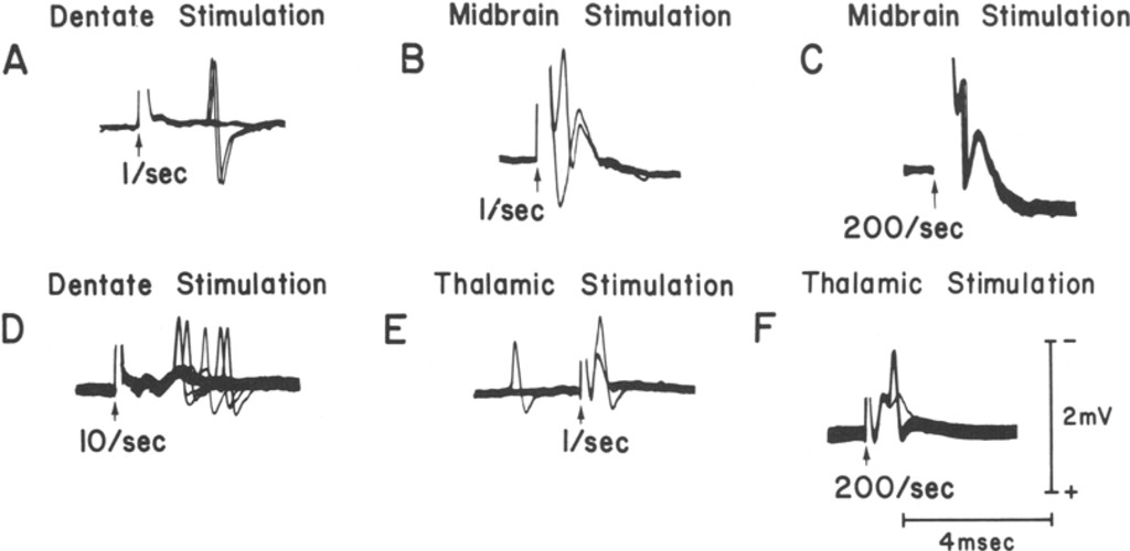 Activation Of Neurons In The Cerebellar Nuclei And Ascending