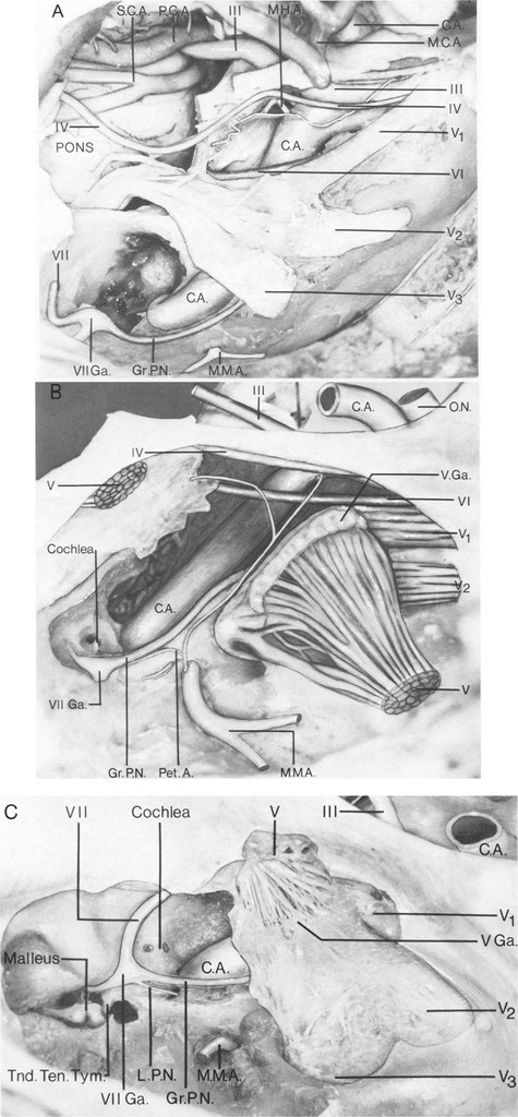 Microsurgical Exposure Of The Petrous Portion Of The Carotid Artery