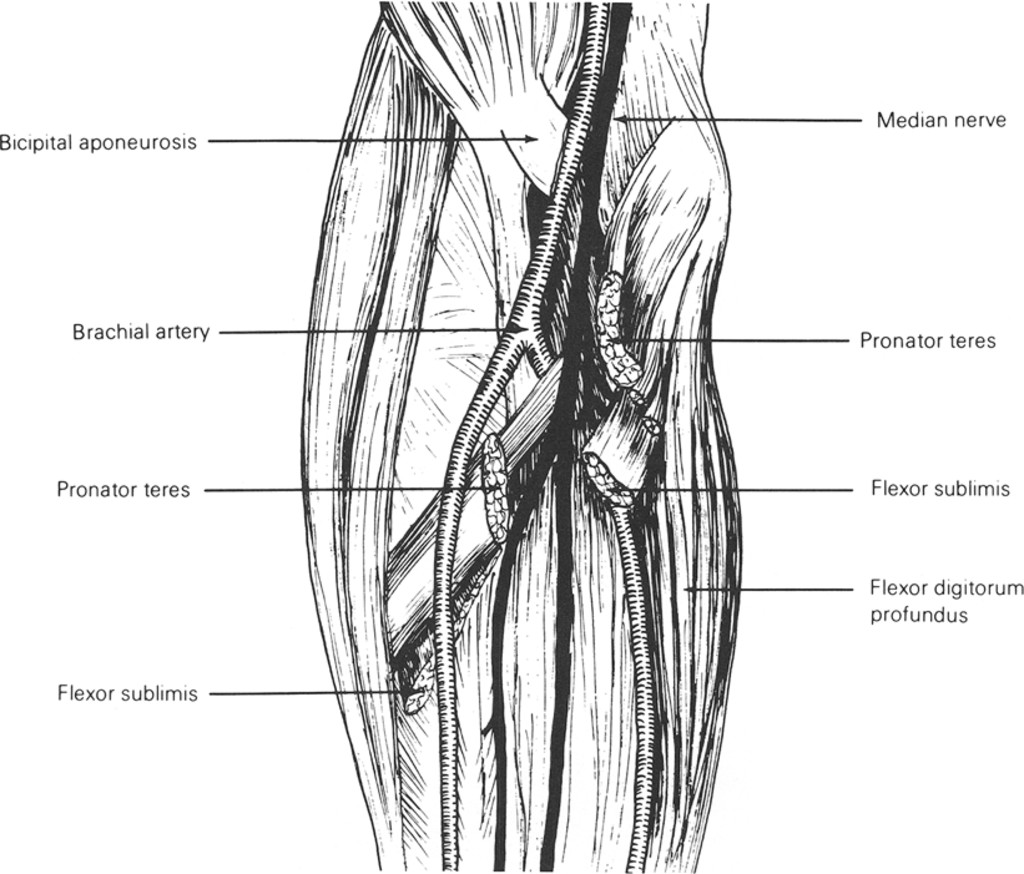 Lacertus Fibrosus Compression Of The Median Nerve In Journal Of