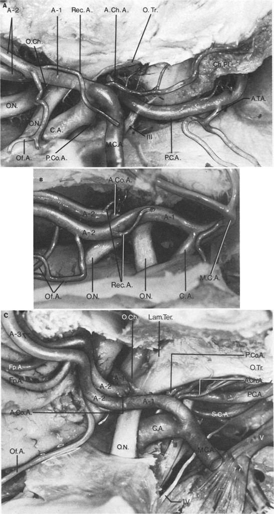 Microsurgical anatomy of the distal anterior cerebral artery in