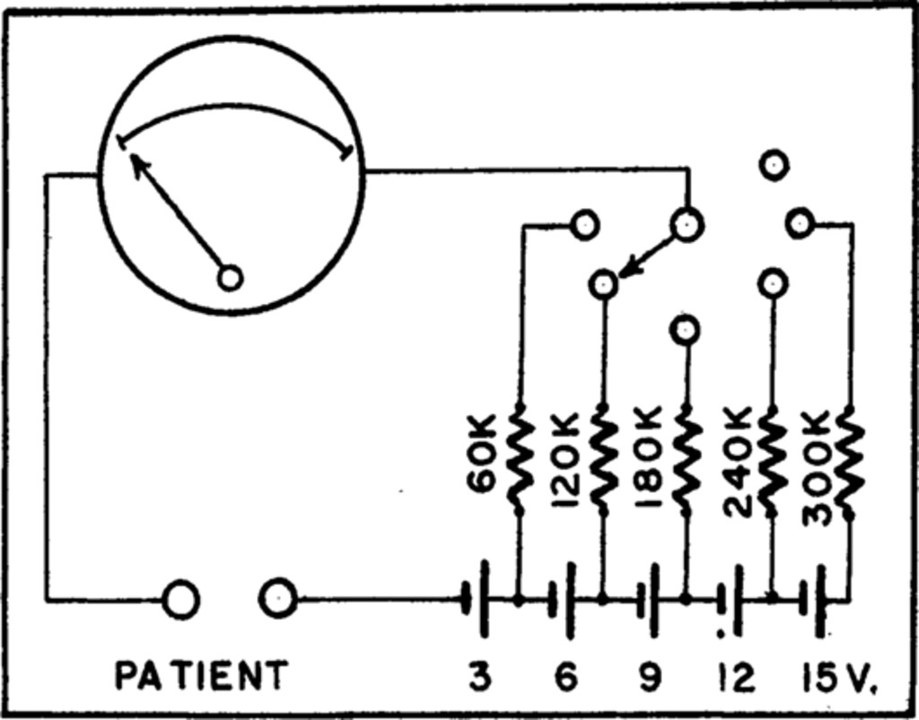 Residual Sympathetic Pathways after Paravertel Sympathectomy ... on b979 ao smith motor diagram, centurion pool pump diagram, ao smith motor parts diagram, pool pump motor diagram, ao smith pool pump diagram, ao smith fan motor wiring diagram, ao smith electric motor wiring diagram, ao smith pump motor wiring diagram, motors 4 blowers wire diagram,