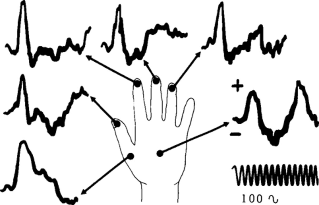 Localization in somatic sensory and motor areas of human cerebral