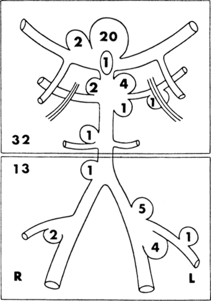 Microneurosurgery For Aneurysms Of The Basilar Artery In Journal Of