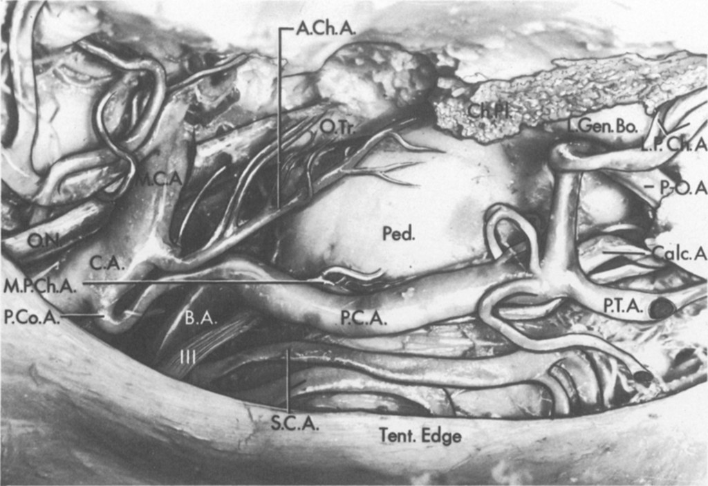 Microsurgical Anatomy Of The Choroidal Arteries Lateral And Third