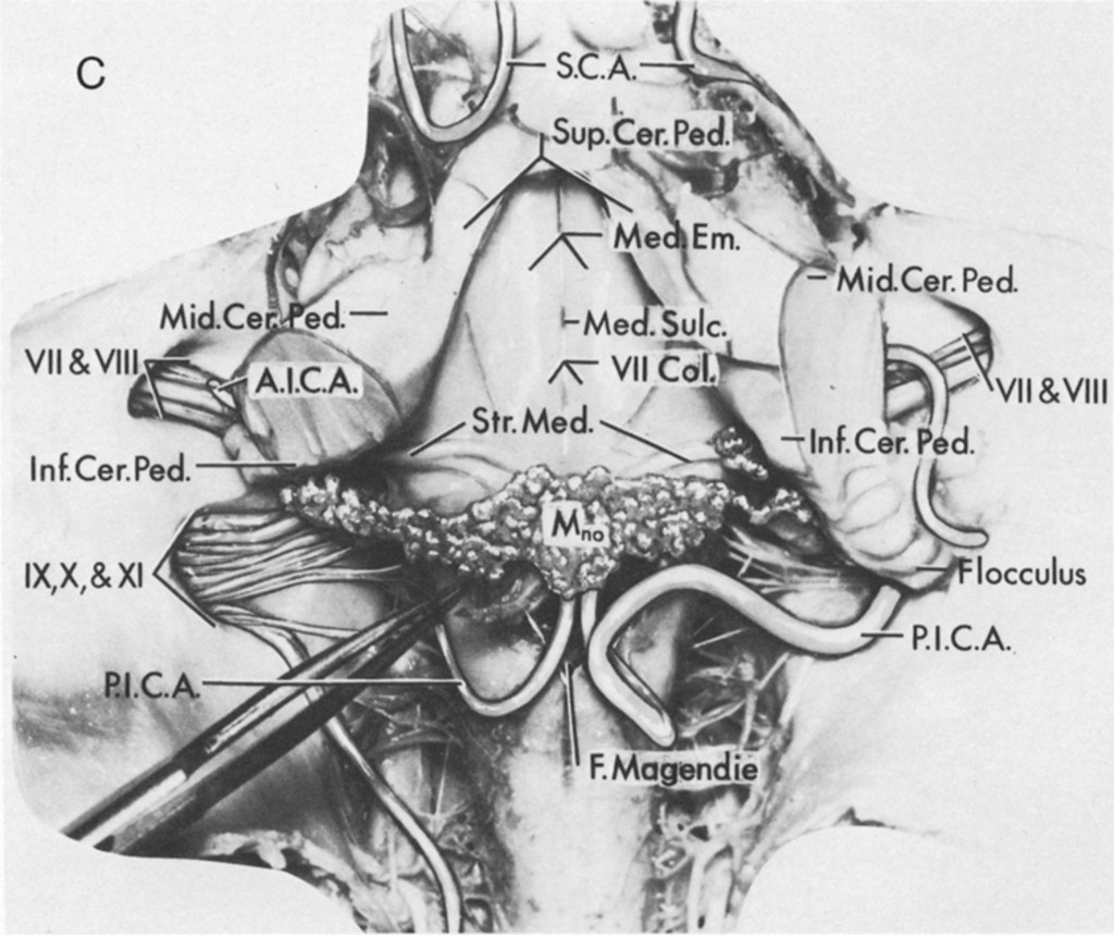Microsurgical Anatomy Of The Choroidal Arteries Fourth Ventricle And