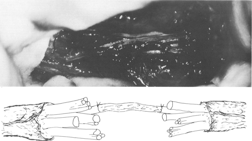 Median and ulnar nerve transections treated with