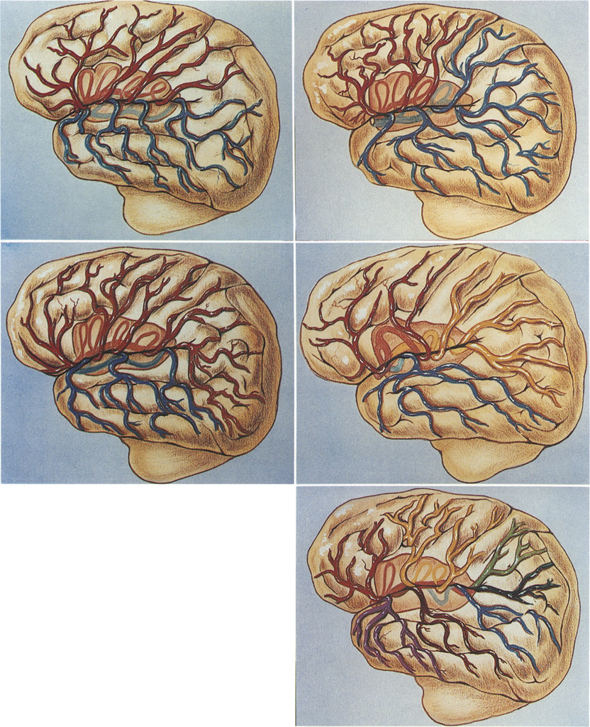 Microsurgical Anatomy Of The Middle Cerebral Artery Journal Of