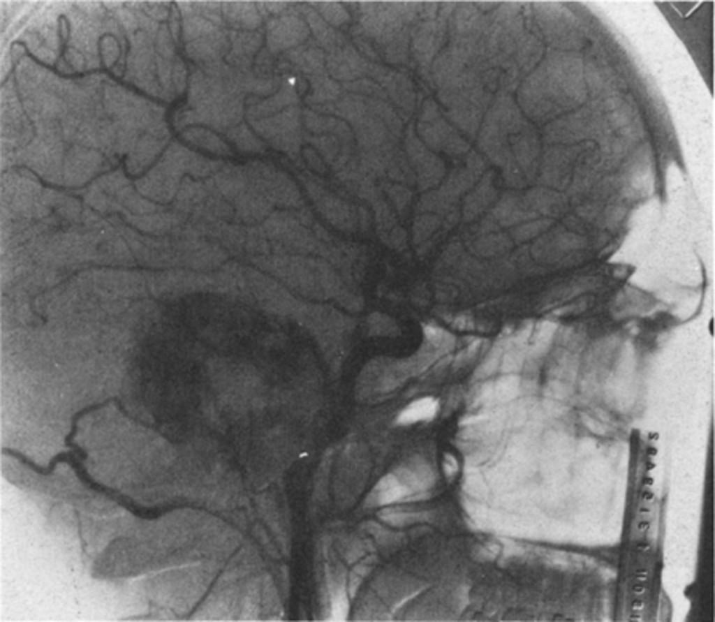 choroid plexus papilloma radiation therapy care a îndepărtat negi pe limbă