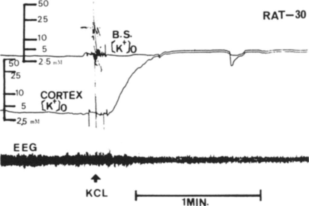 Changes in extracellular potassium concentration in cortex ...