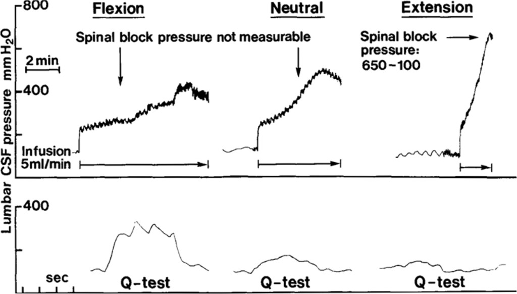 Clinical Recording Of Pressure On The Spinal Cord And Cauda Equina