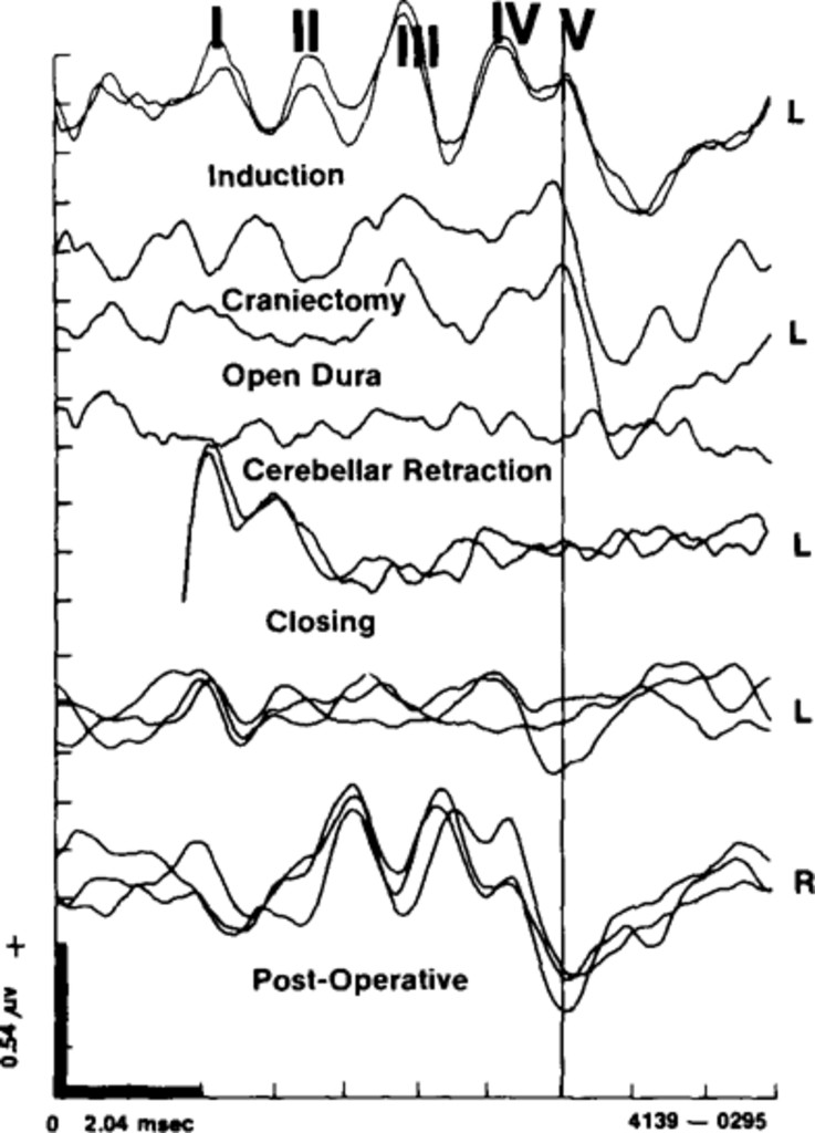 Intraoperative Monitoring Of Brain Stem Auditory Evoked Potentials
