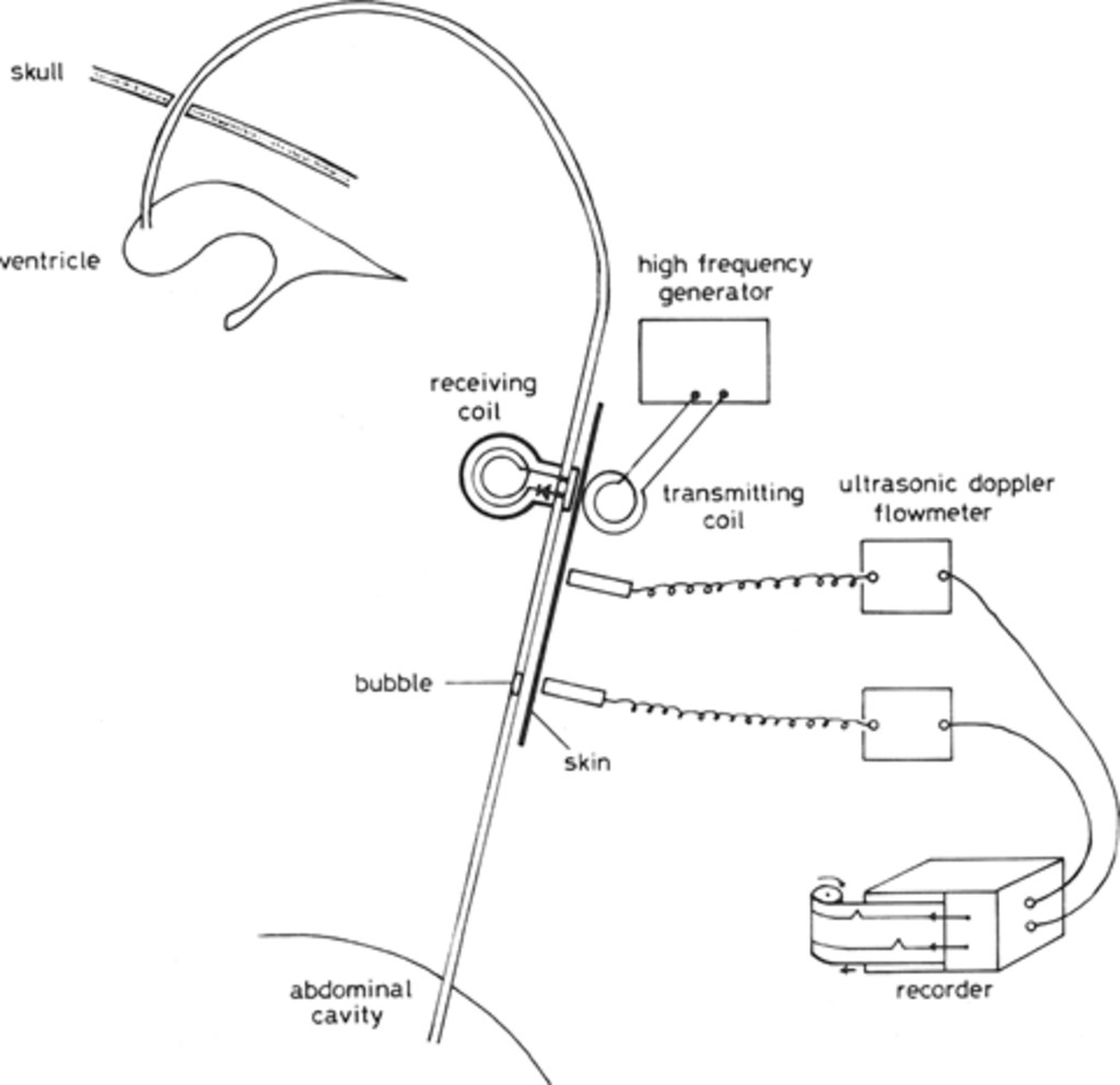 a new method for measuring cerebrospinal fluid flow in shunts   journal of neurosurgery
