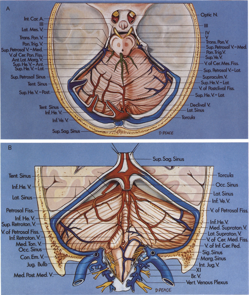 Microsurgical Anatomy Of The Veins Of The Posterior Fossa In