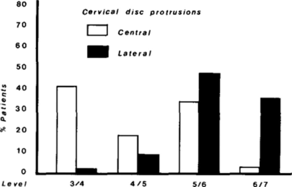 Spinal cord compression due to prolapse of cervical intervertebral
