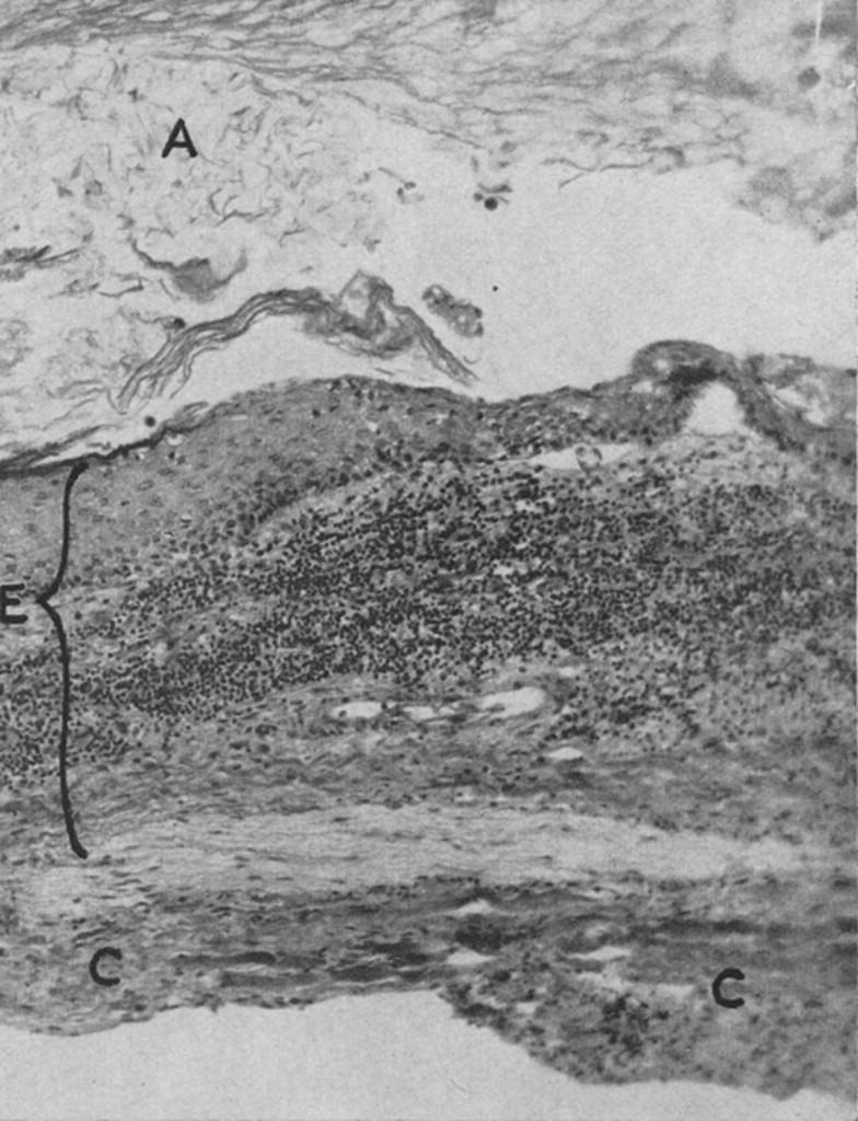 A Cervical and a Lumbar Pilonidal Sinus Communicating with