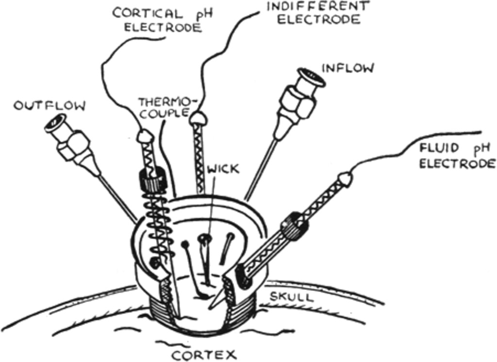 1157 bulb wiring diagram