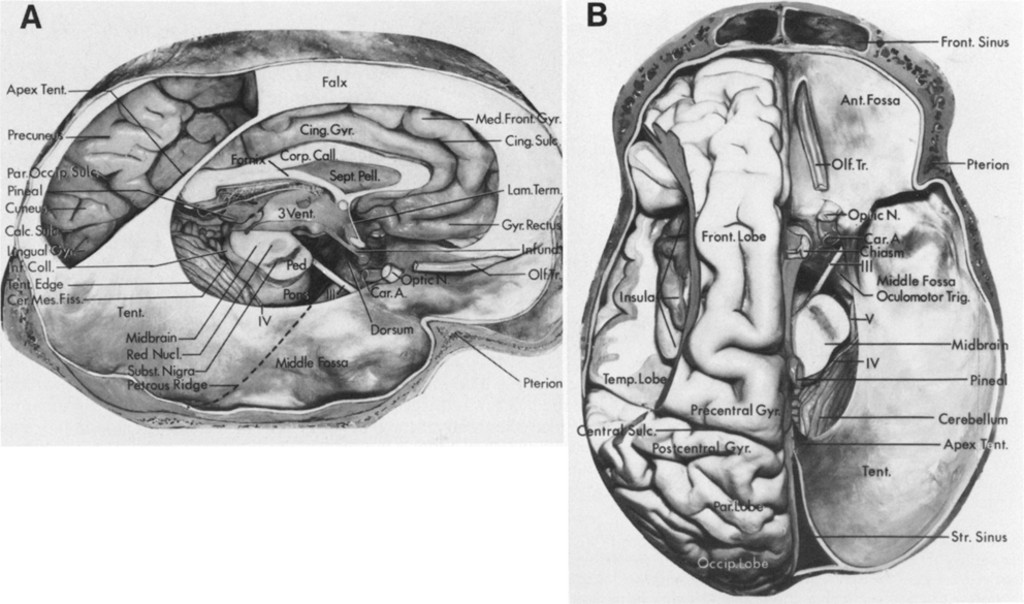 Microsurgical anatomy of the region of the tentorial incisura ...