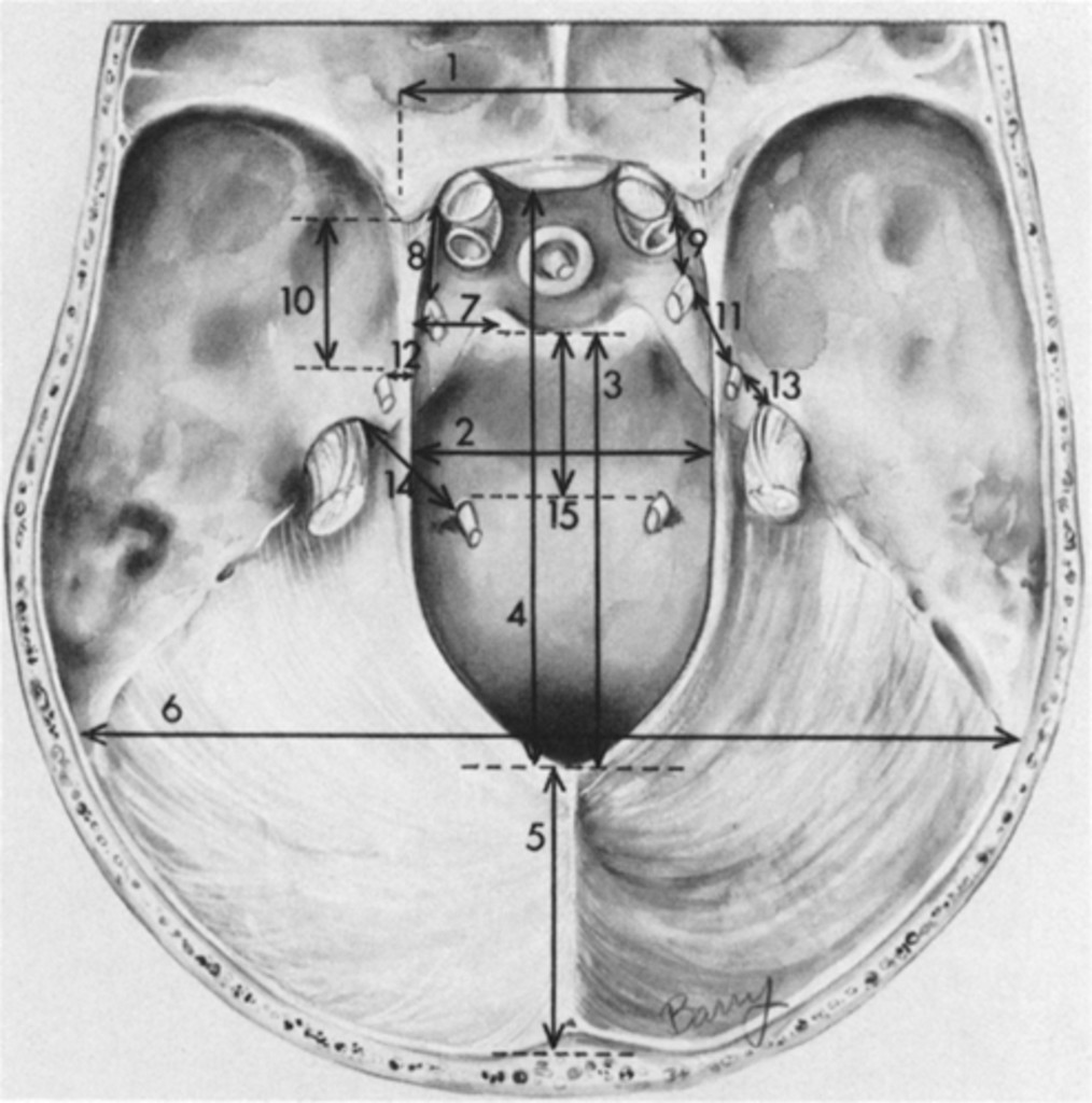 Microsurgical Anatomy Of The Region Of The Tentorial