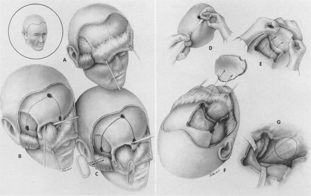 Surgical Approaches To The Orbit Journal Of Neurosurgery