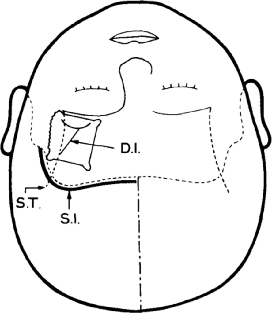 surgical treatment of middle cerebral artery aneurysms in  journal of neurosurgery volume 61