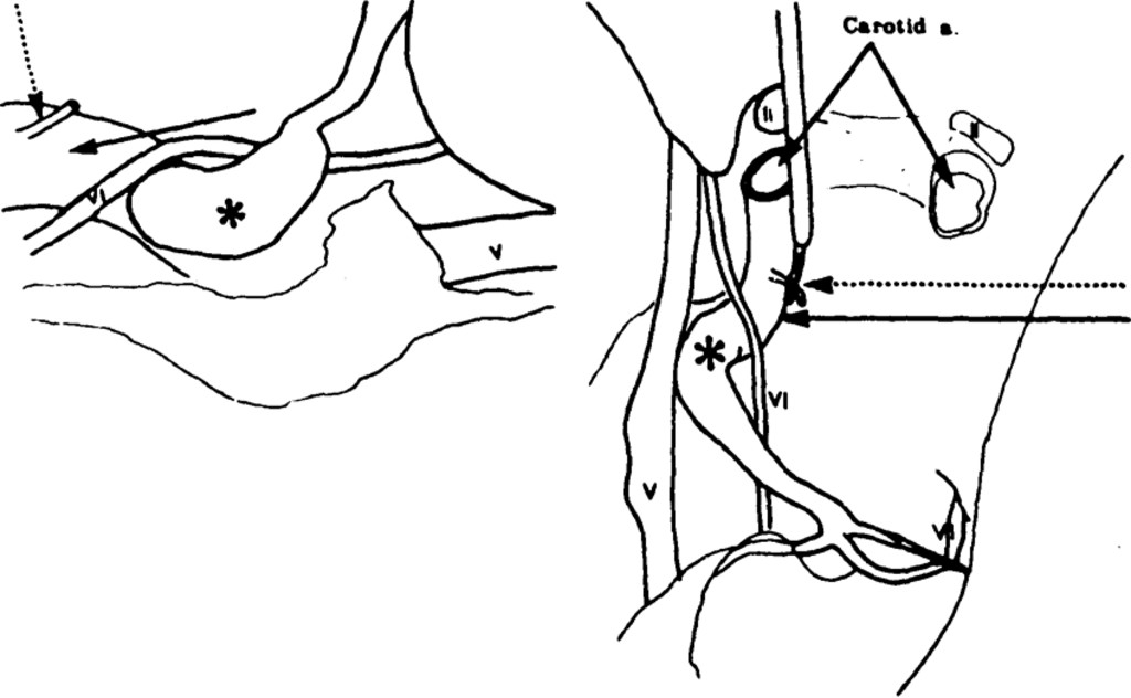 Cavernous Sinus Fistula Caused By Intracavernous Rupture Of A
