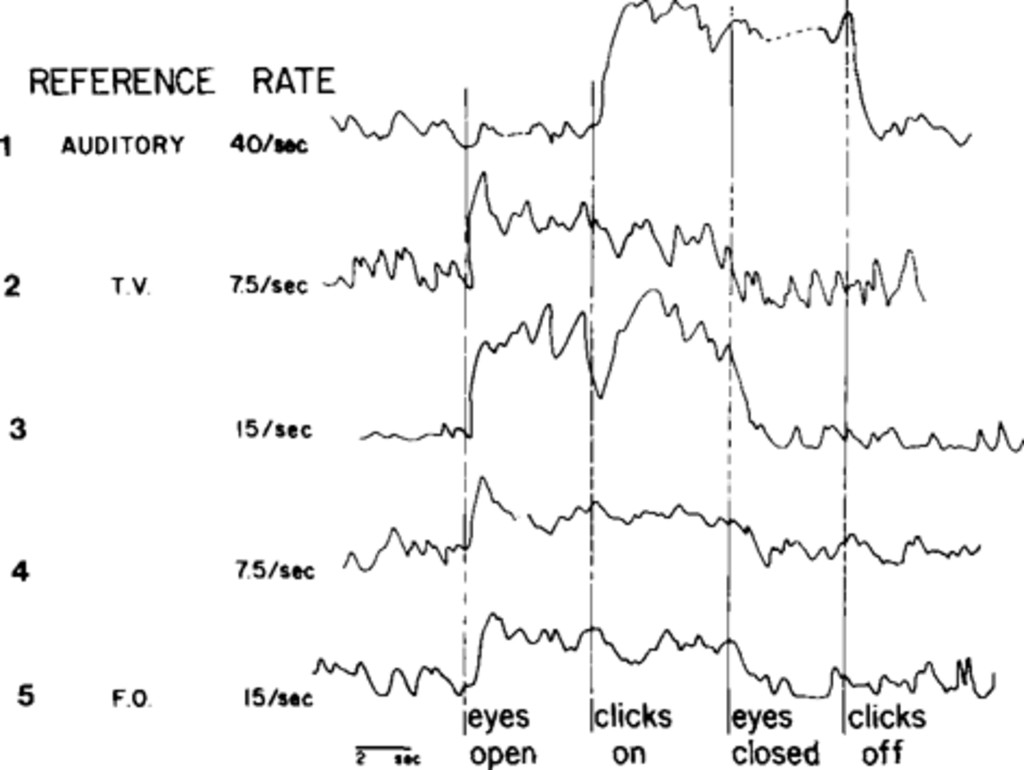 Detection And Measurement Of Steady State Evoked Potentials In Real Lockin Amplifierj Fig 3