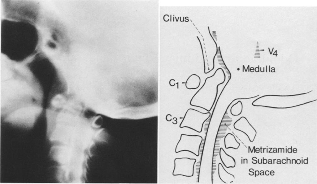 Odontoid Upward Migration In Rheumatoid Arthritis Journal Of