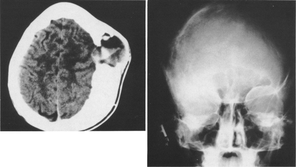 Aneurysmal bone cyst with fibrous dysplasia of the parietal