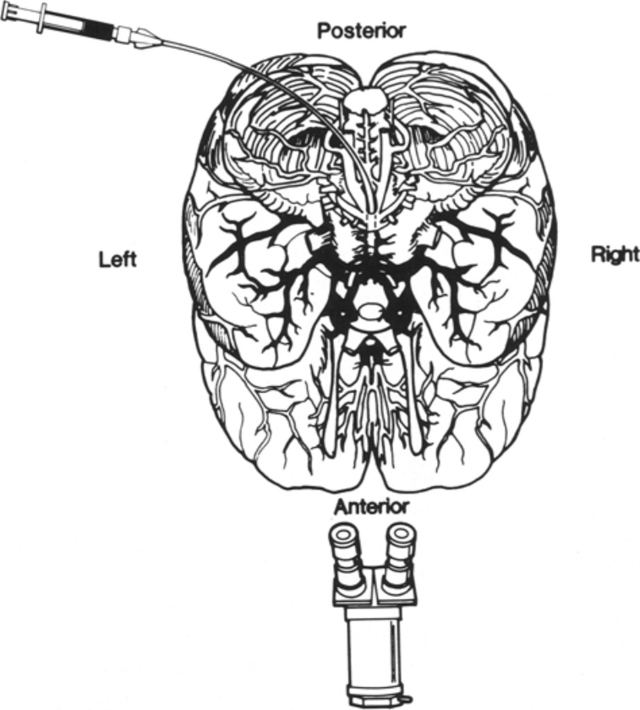 Microvascular Anatomy Of The Interpeduncular Fossa In Journal Of