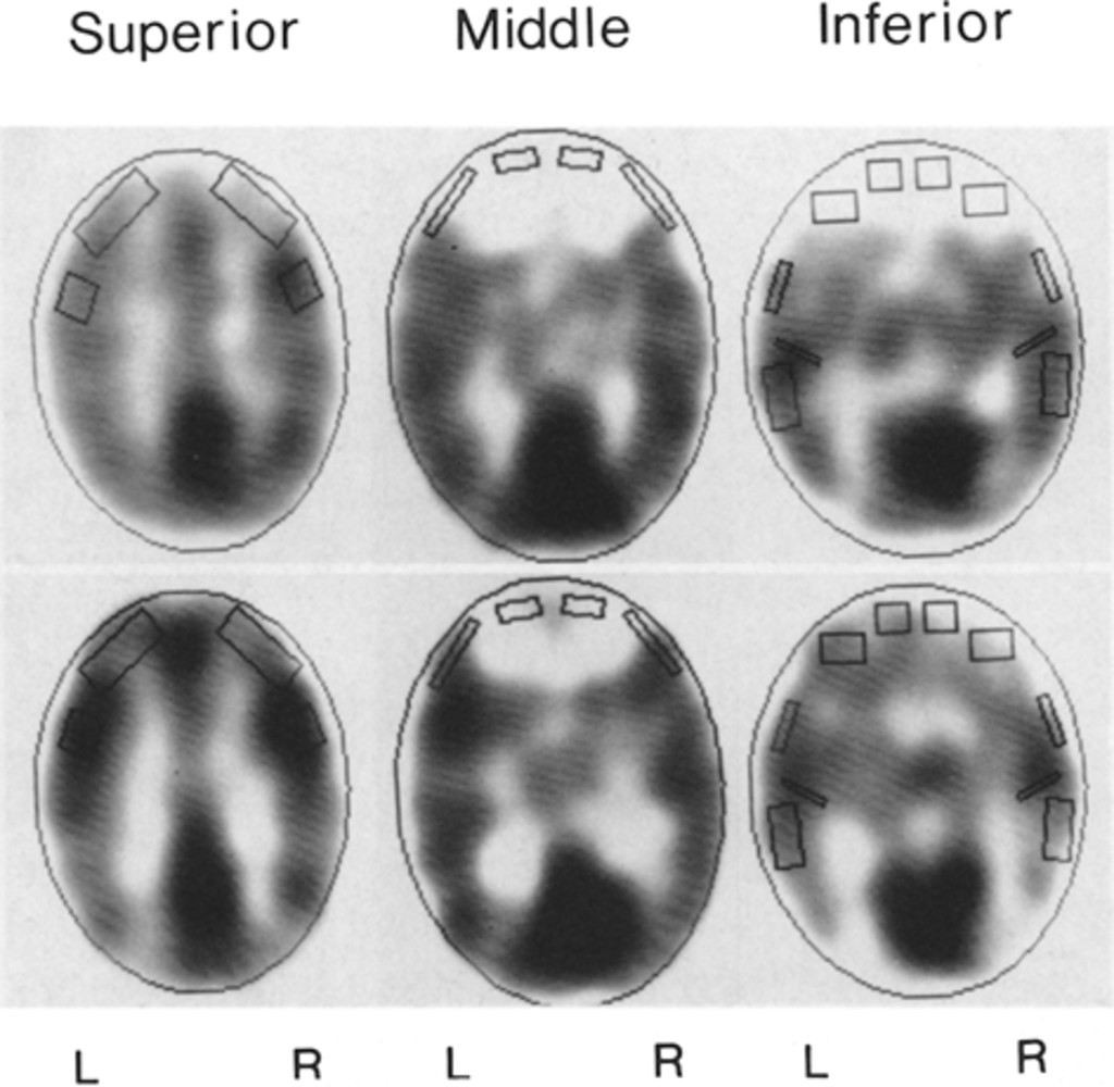 Case 2 Positron Emission Tomography Scans On August 6 1984 Upper And February 4 1985 Lower The Regions Of Interest Marked On Each Scan Are