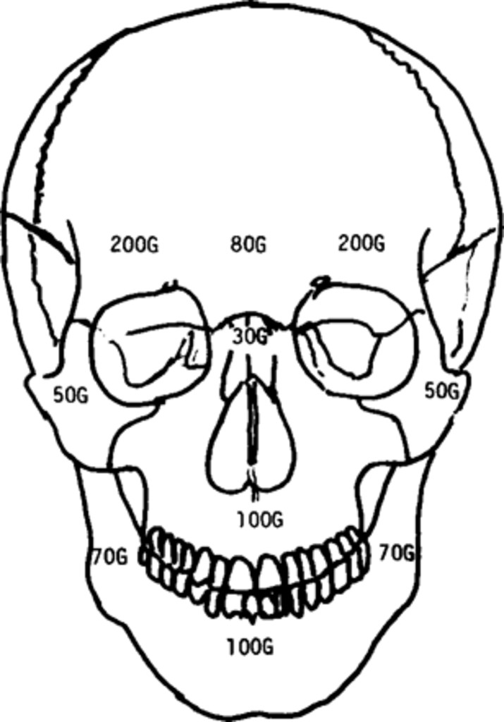The Impact Absorbing Effects Of Facial Fractures In Closed Head