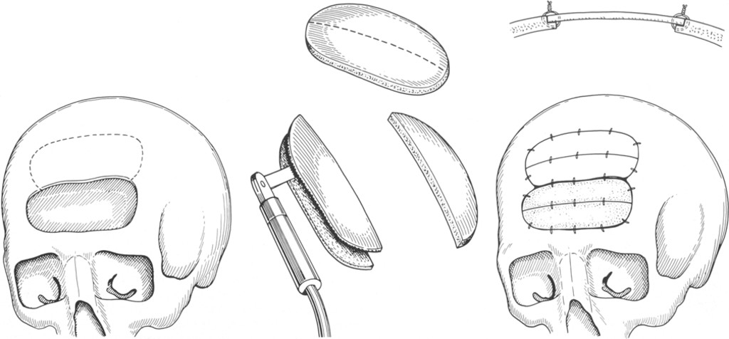 Management Of Extensive And Difficult Cranial Defects In Journal Of