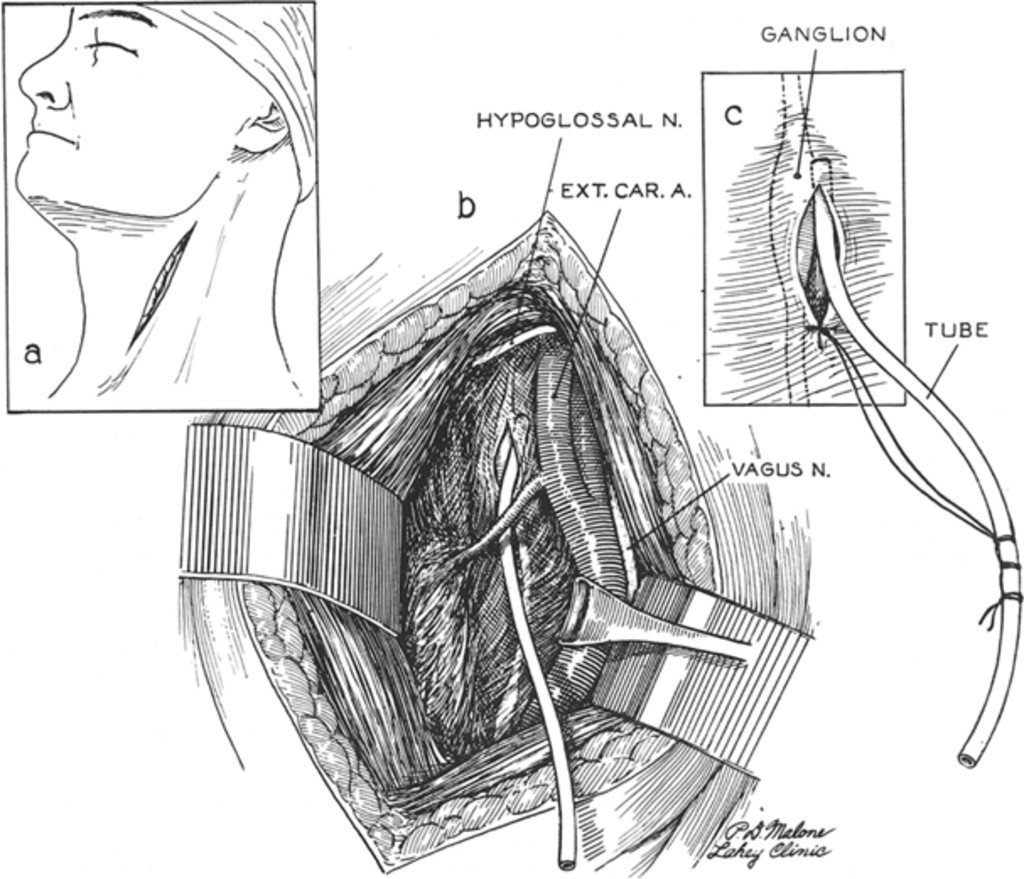 Ligation Of The Internal Carotid Artery In The Neck Journal Of