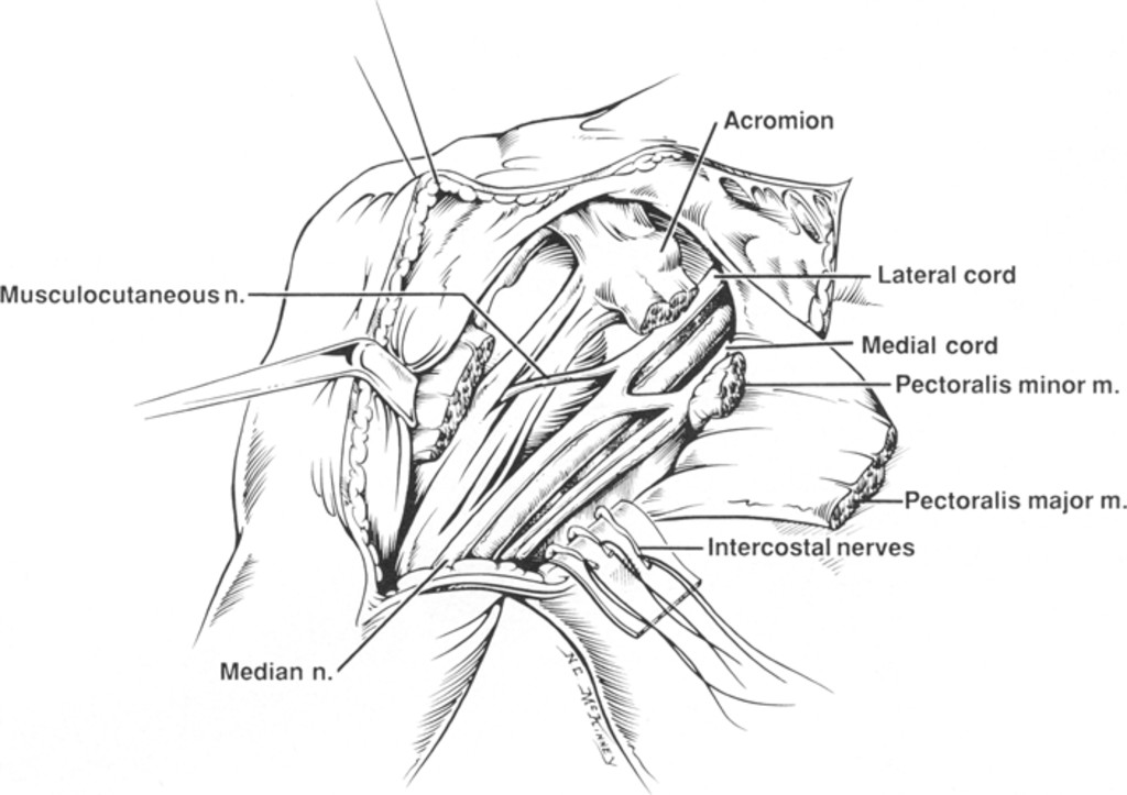 Nerve Transposition For The Restoration Of Elbow Flexion Following