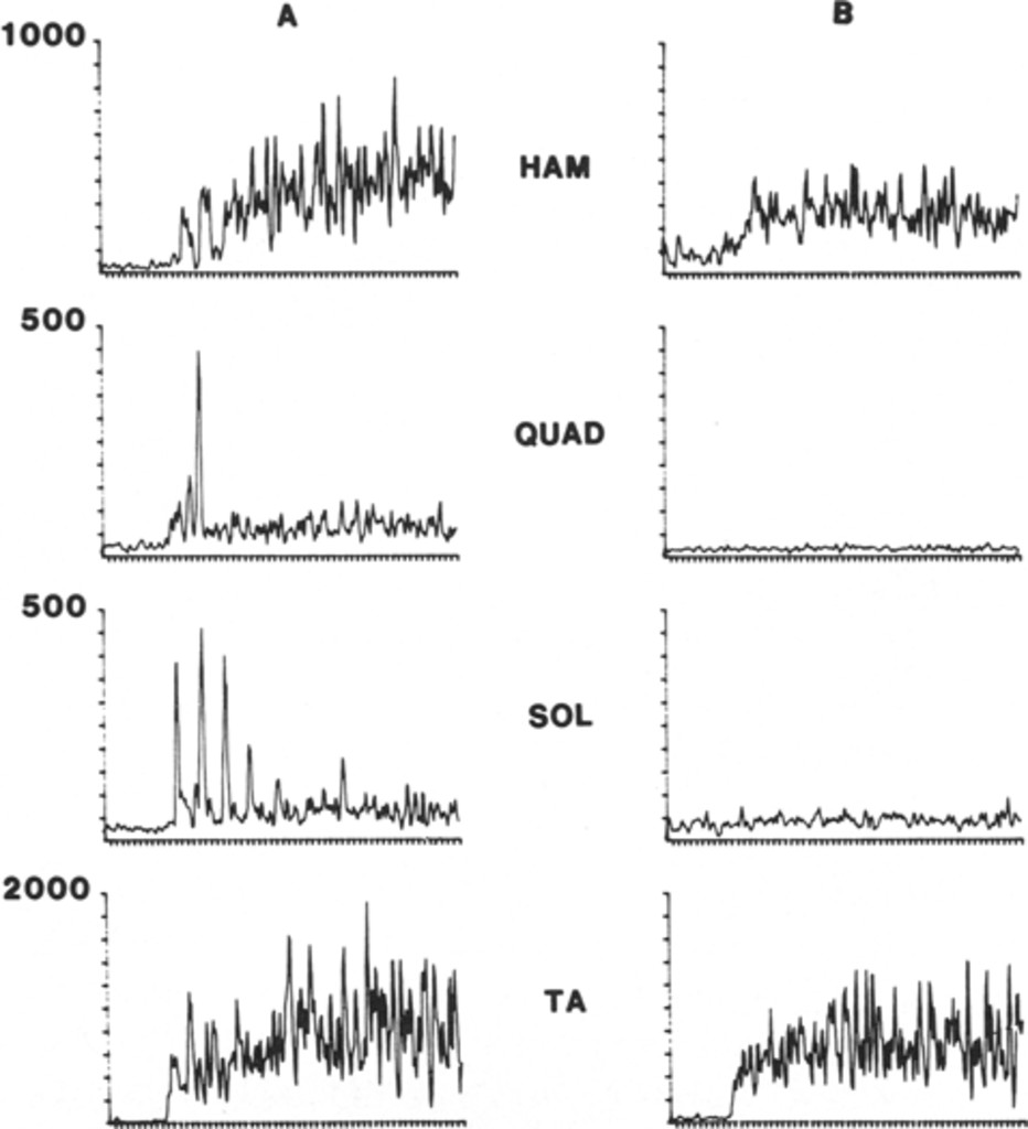 Effects Of Intrathecal Baclofen On Voluntary Motor Control In Parts List For Fig2 Active Tone Using Single Transistor Fig 1