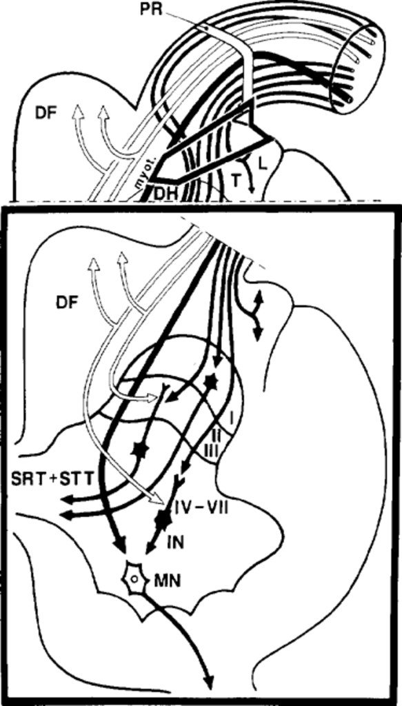 Somatosensory Function Following Dorsal Root Entry Zone Lesions In