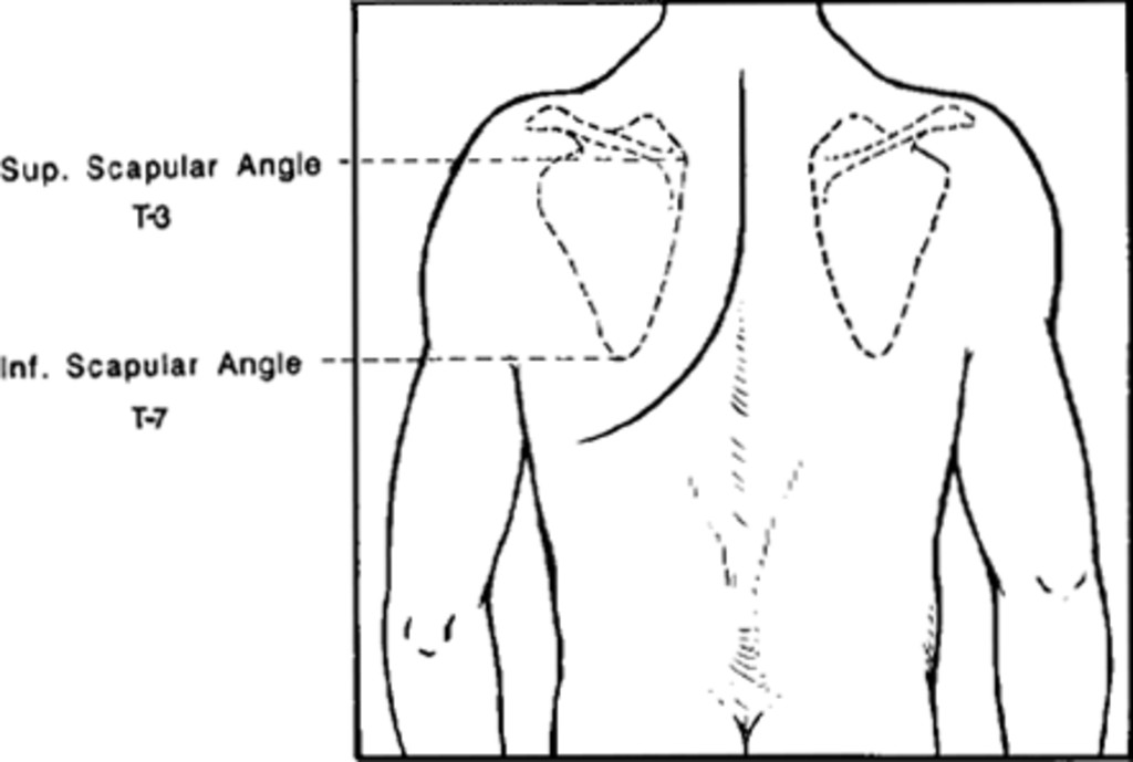 Lateral Parascapular Extrapleural Approach To The Upper Thoracic