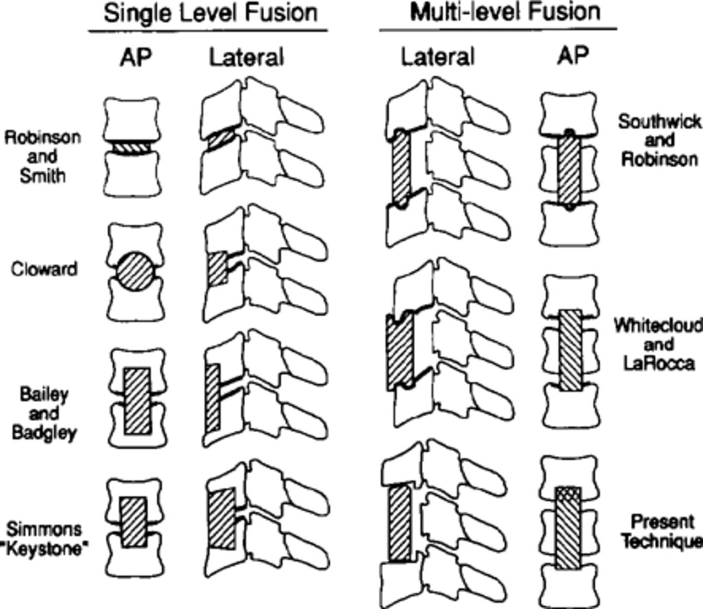 Anterior Cervical Vertebrectomy And Interbody Fusion Journal Of Rockville Clip Down Monitor Wiring Diagram Fig 6