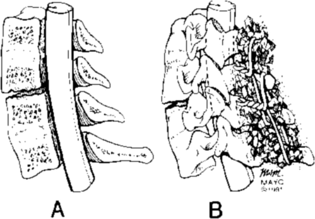 Neurological Complications Of Ankylosing Spondylitis In Journal Of