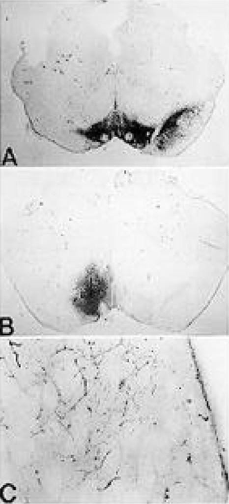Intrastriatal implantation of interleukin-1 in: Journal of