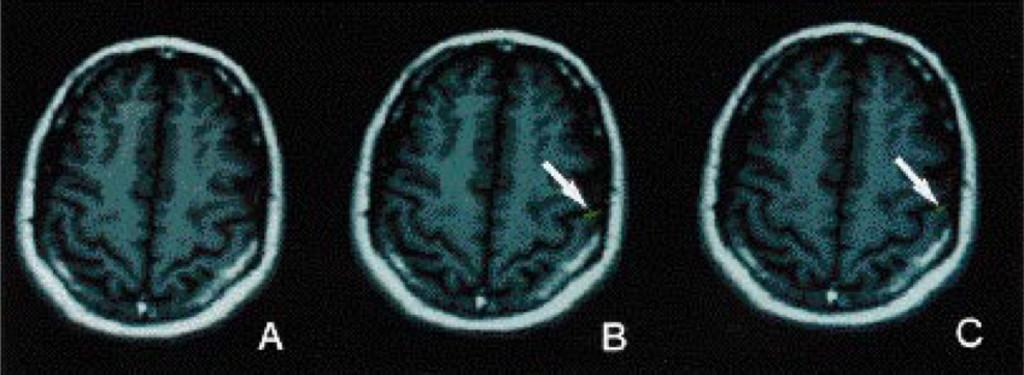 Functional magnetic resonance imaging of sensory and motor