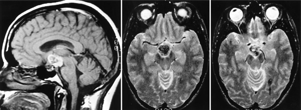 Cavernous Malformation Of The Mammillary Bodies Neuropsychological Implications In Journal Of Neurosurgery Volume 83 Issue 2 1995 The mammillary bodies form a crucial component of the brain's circuitry. cavernous malformation of the