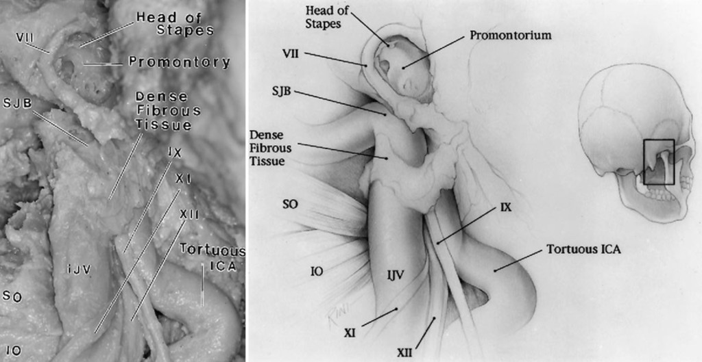 The Microsurgical Anatomy Of The Jugular Foramen Journal Of