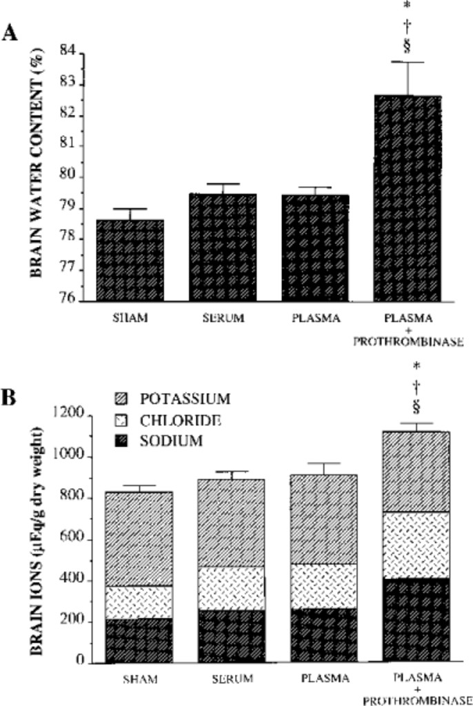 Edema from intracerebral hemorrhage: the role of thrombin in