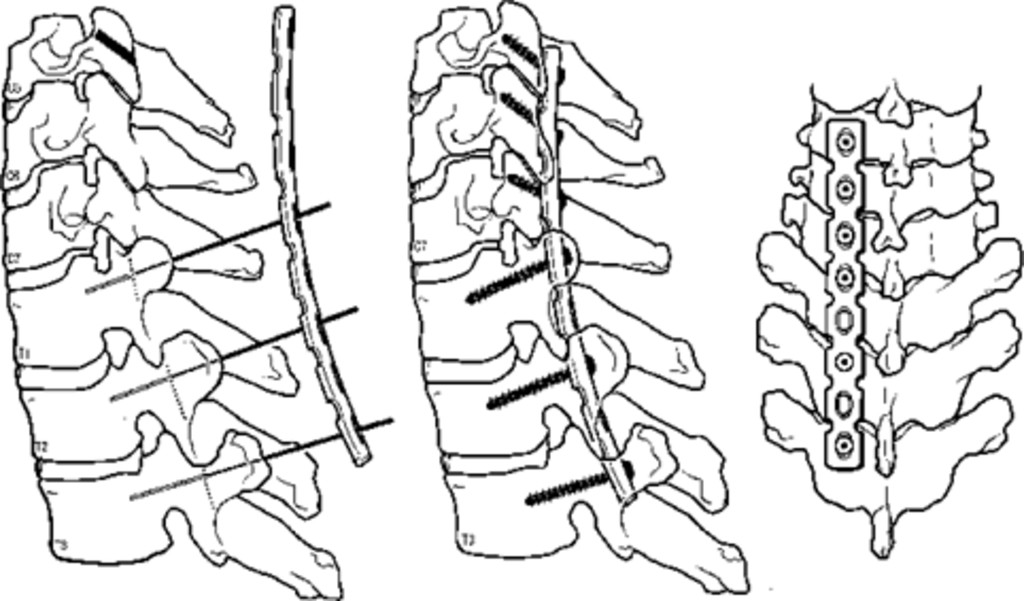 Posterior Instrumentation Of The Unstable Cervicothoracic Spine In