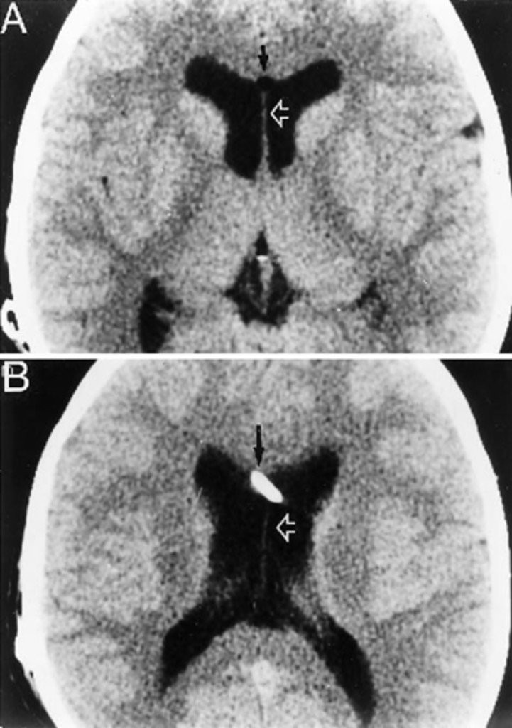 Expanding cyst of the septum pellucidum in: Journal of