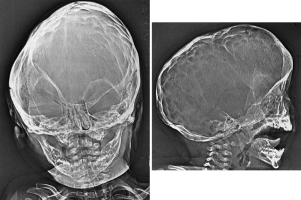 sagittal suture fusion - 1024×681